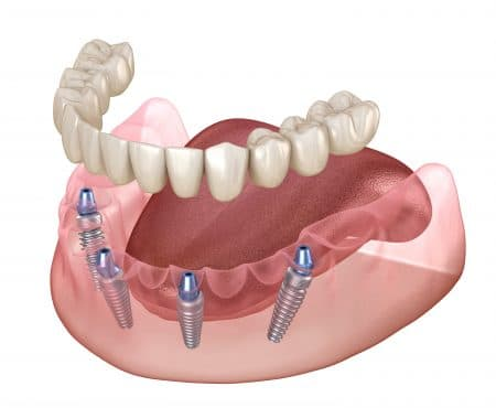 all-on-4 implant dentures