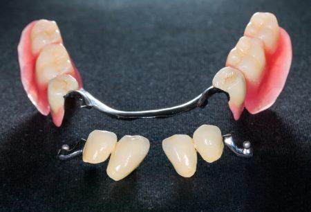 Closeup of dental skeletal prosthesis with porcelain crowns