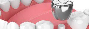 3d render of teeth with dental crown amalgam fillingover white background