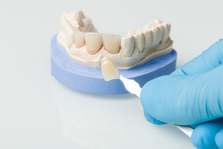 Using shade guide to check veneer ofdenture parts in a dental laboratory