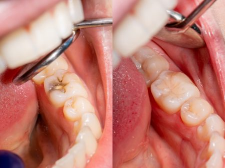 Dental caries. Filling with dental composite photopolymer material using Rubber Dam. The concept of dental treatment in a dental clinic